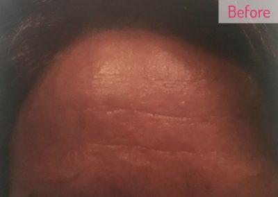 before-skin
