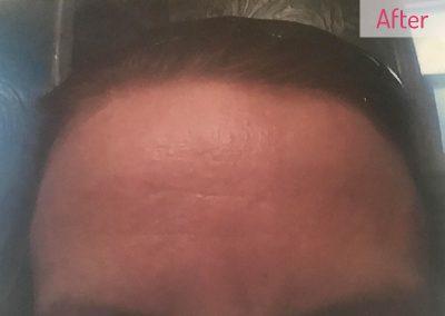 skin-after
